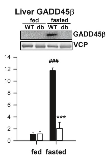 An impressive difference in GADD45β levels in the liver between fasted and fed mice