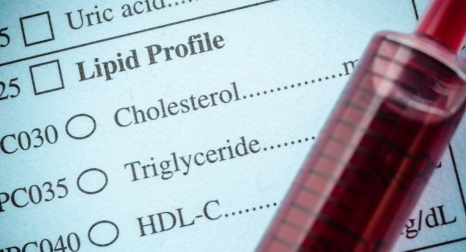 Fasting May Increase LDL Cholesterol Levels